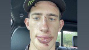 AMA Supercross 450: Sexton irreconhecível após queda em Arlington 3 thumbnail